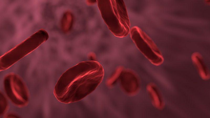 Anemia – jak leczyć naturalnie? - Biolit