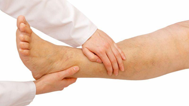 Żylaki kończyn dolnych - leczenie naturalne - Biolit