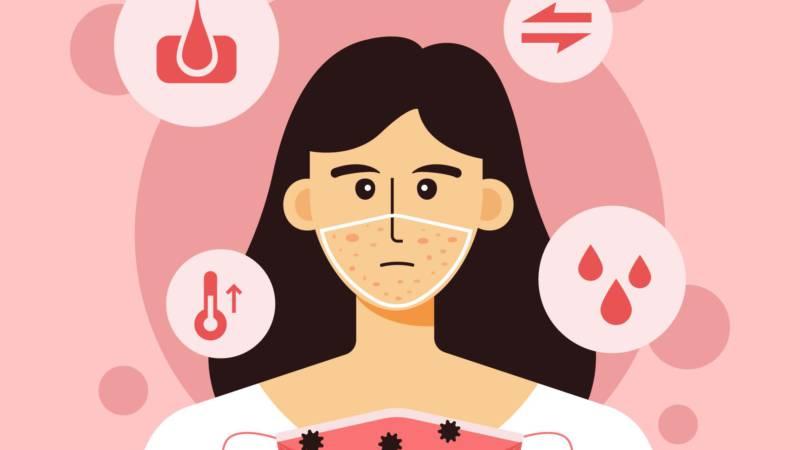 Maskne – czyli nowe schorzenie skóry. - Biolit